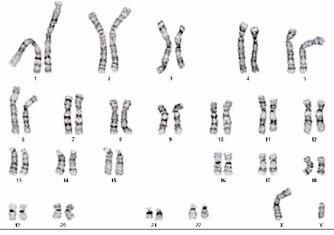 Xeroderma Pigmentosum Chromosomes GM00498