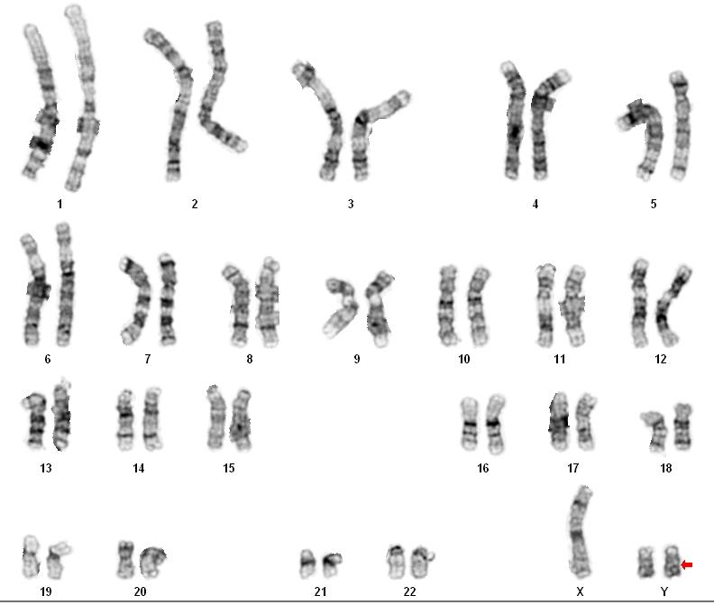 Xyy Syndrome Karyotype GM23240